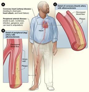 Эффективное Лечение Атеросклероза!