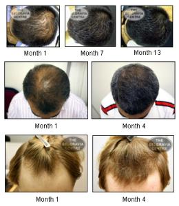 Эффективное Лечение Выпадения Волос! Восстановление и Омоложение Волосяных Луковиц!