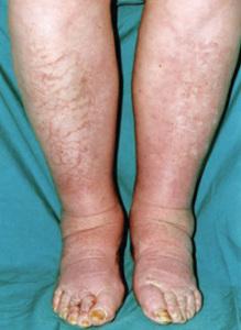 Эффективное Лечение Отёчности Ног!