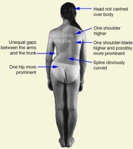 Еффективное Лечение Сколиоза